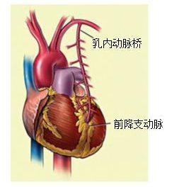 心臟搭橋也能很微創
