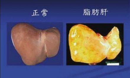 找到脂肪肝發生的信號通路