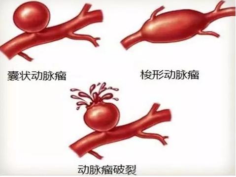 顱內待爆炸彈—動脈瘤