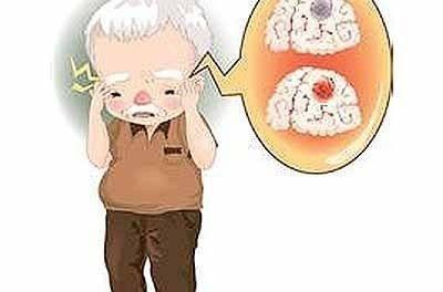 糖尿病對於腦出血發生的風險評估