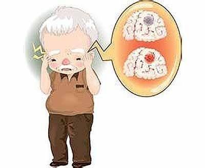 糖尿病对于脑出血发生的风险评估