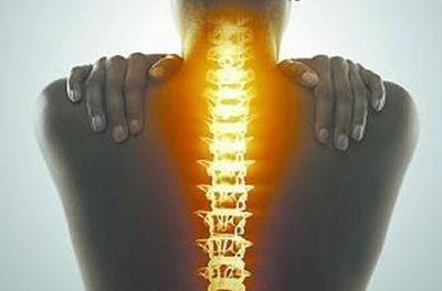 被当成癌症的脊柱结核