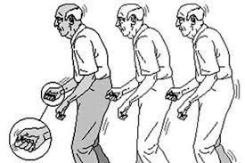 帕金森病人走出左旋多巴使用誤區