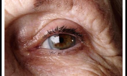 老人怎样保护眼睛免遭眼疾?