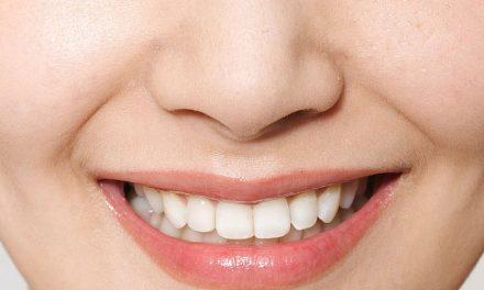 怎麼認識牙齒移位?
