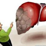 長期肝炎原因不明——警惕隱匿性乙肝
