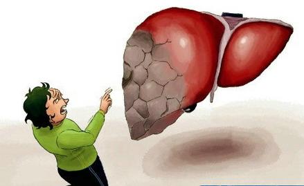 长期肝炎原因不明——警惕隐匿性乙肝