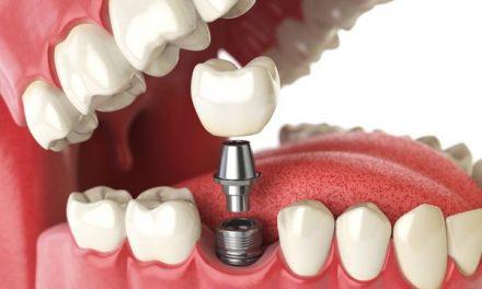 怎样认识植牙?