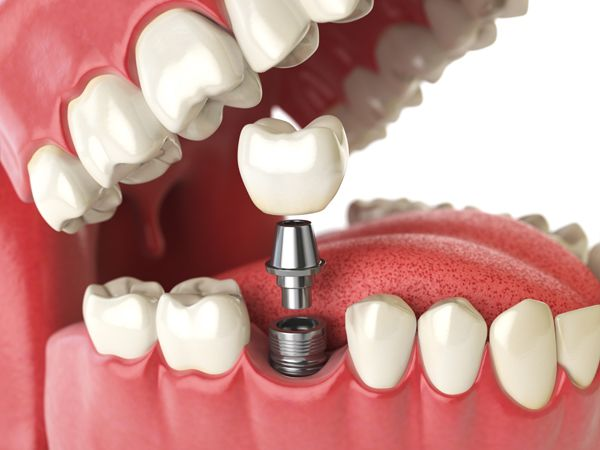 怎樣認識植牙?