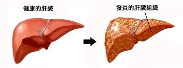 減肥怎會減出了肝炎