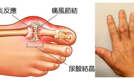 痛风急性发作:用药莫入两误区