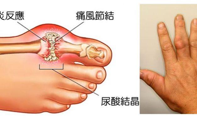痛風急性發作:用藥莫入兩誤區