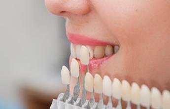 談談陶瓷牙貼