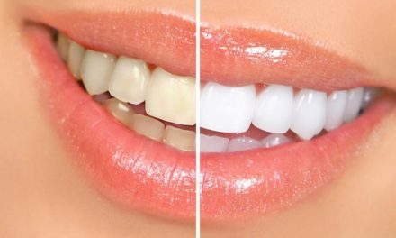 牙齿美白的方式及效果