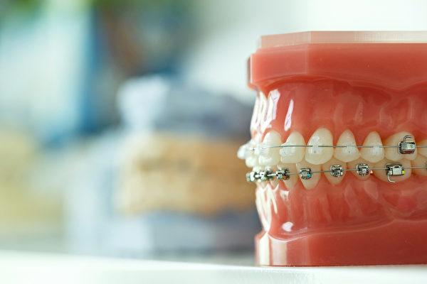 牙齒矯正的最佳時間及注意點