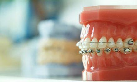 牙齿矫正的最佳时间及注意点