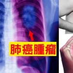 肺癌篩查從X線到LDCT