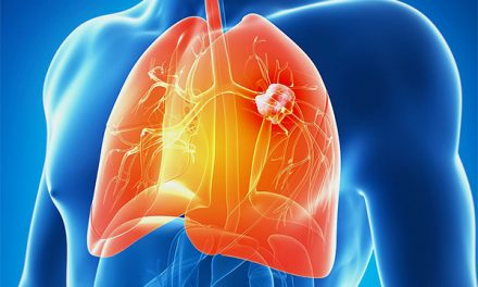 百年間肺癌成全球第一殺手