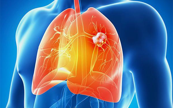 百年间肺癌成全球第一杀手