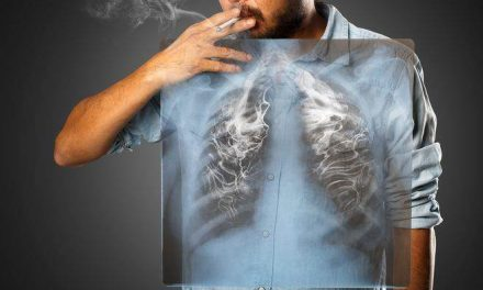 防控肺癌 切勿吸烟