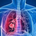 肺部發現結節是肺癌嗎?