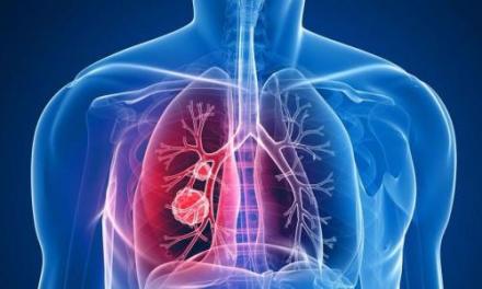 肺部发现结节是肺癌吗?