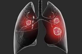 肺癌早发现:每年一次低剂量螺旋CT