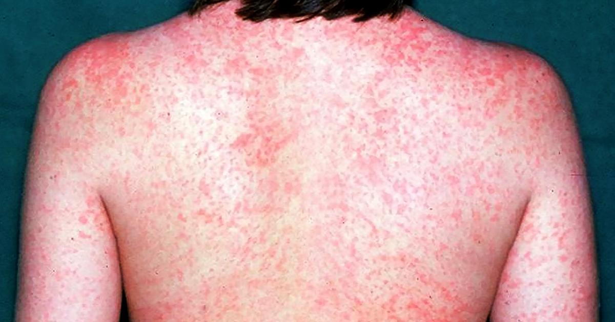 打过麻疹疫苗为何仍患麻疹?