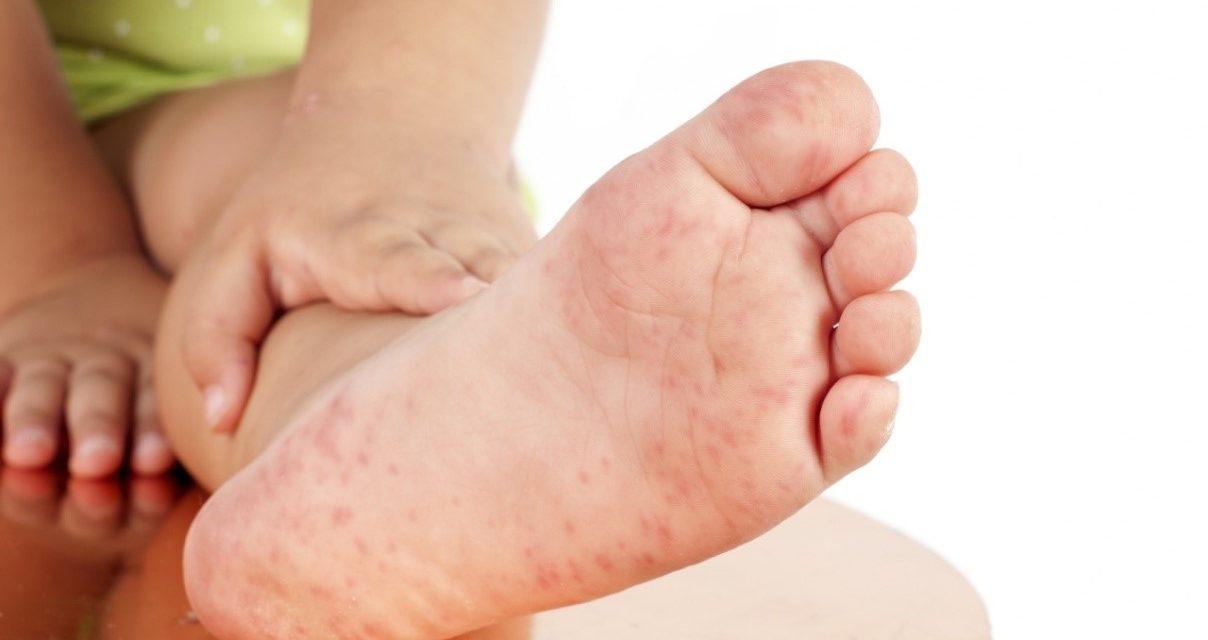 防治手足口病五个环节