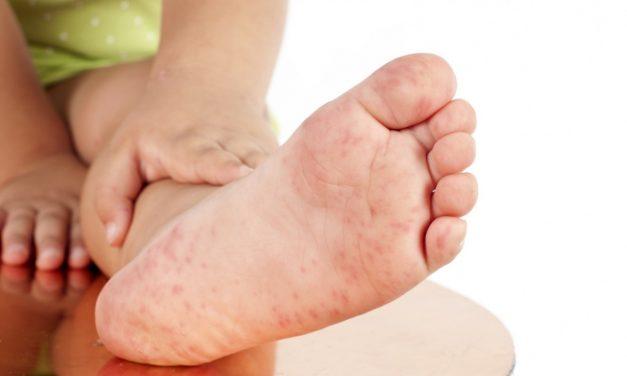 防治手足口病五個環節