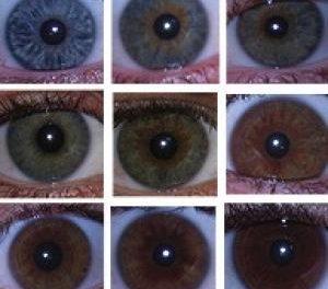易与青光眼混淆的疾病