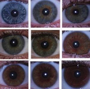 易與青光眼混淆的疾病