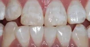 牙齒白斑和脫鈣