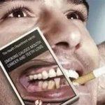 吸煙是牙周病的黑手
