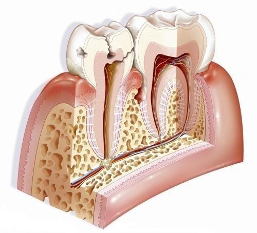 走出牙周病的認識誤區