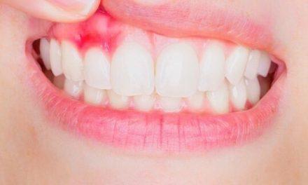 牙齦腫痛、出血,是牙周病嗎 ?