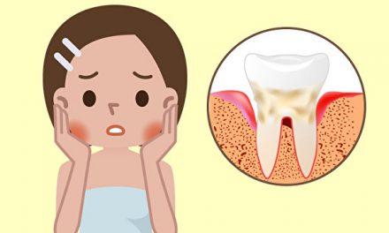 牙周病六问