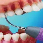 怎麼治牙周病