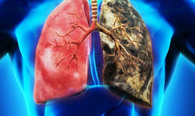 慢阻肺离肺癌有多远