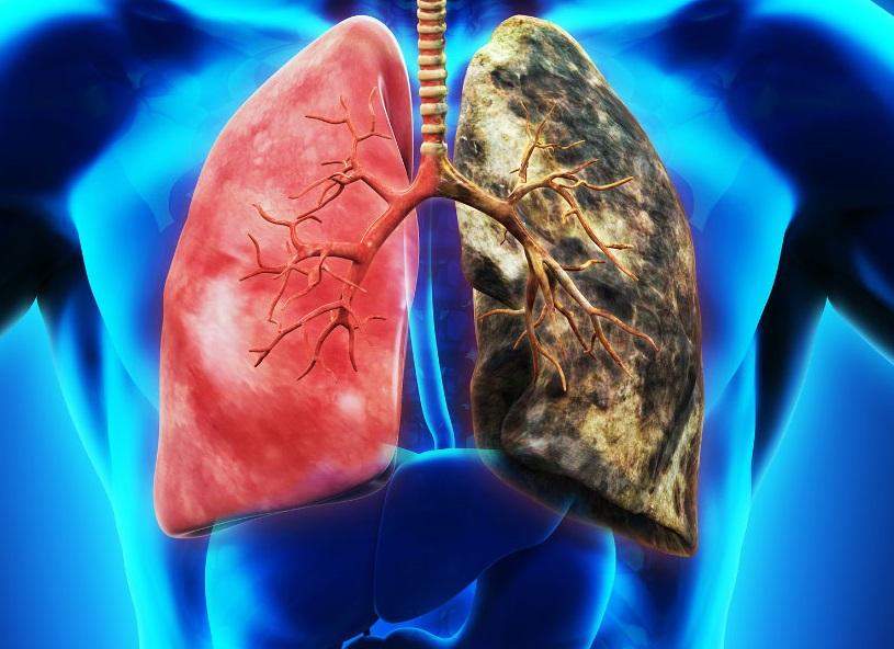 慢阻肺離肺癌有多遠