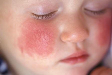 寶寶濕疹六個誤區