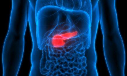 胰腺癌的早期表現:糖尿病
