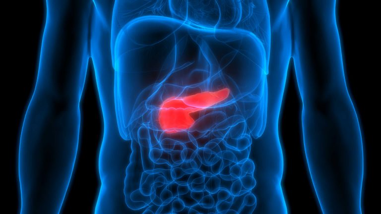 胰腺癌的早期表现:糖尿病