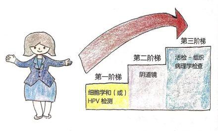 宫颈癌筛查三阶梯