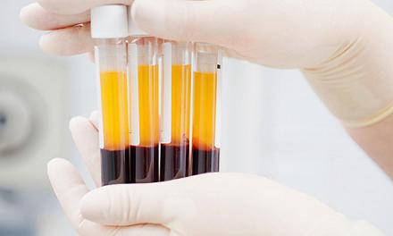 血浆是治疗新冠肺炎的特效药吗?