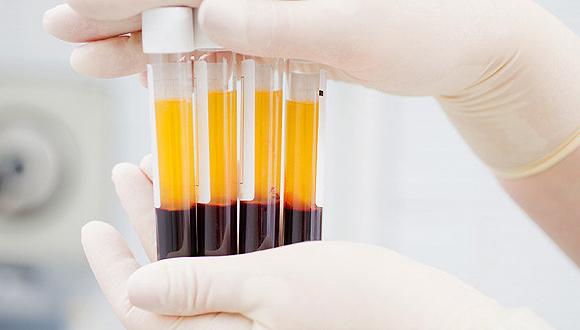 血漿是治療新冠肺炎的特效藥嗎?