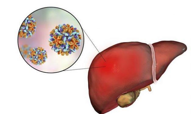 哪些因素影響乙肝治療