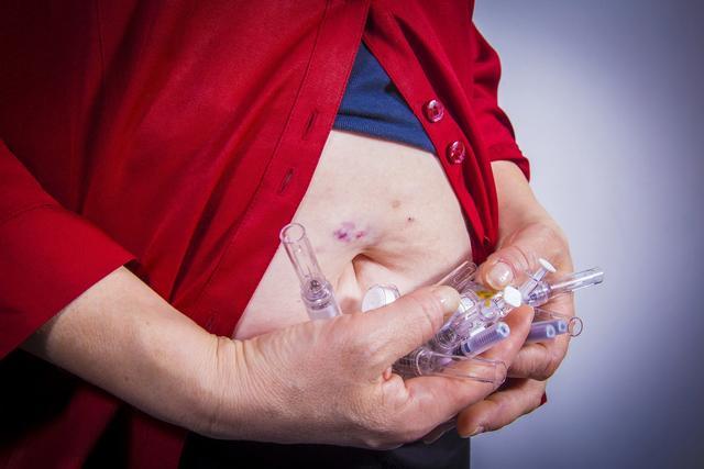 糖尿病已成慢性腎病重災區