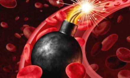 高血压引爆神秘炸弹──主动脉夹层