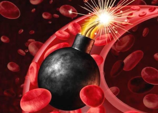 高血壓引爆神秘炸彈──主動脈夾層